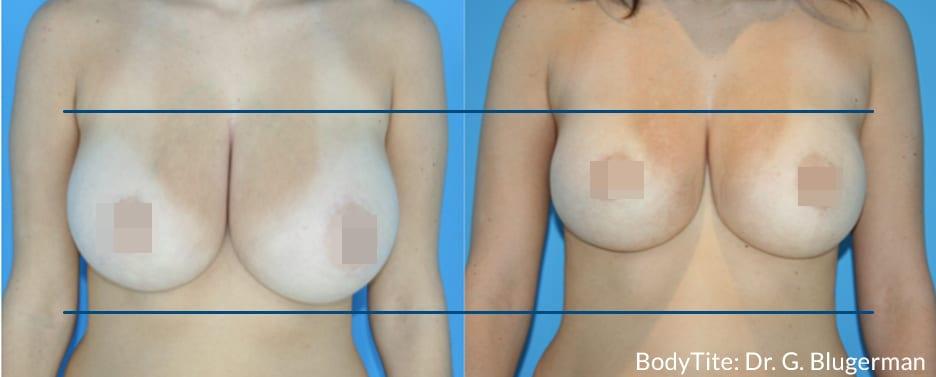 BodyTite_GB_DS_Breast1 (1)-img-blog