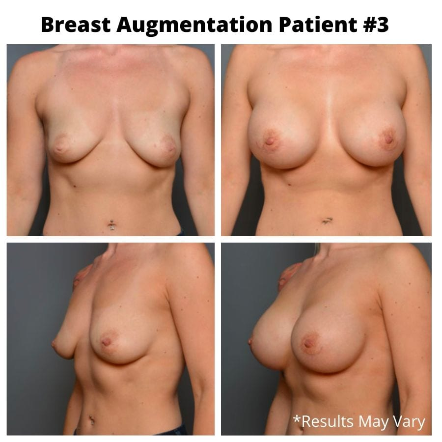 Before and after image showing the results of a breast augmentation performed in Seattle, Washington.