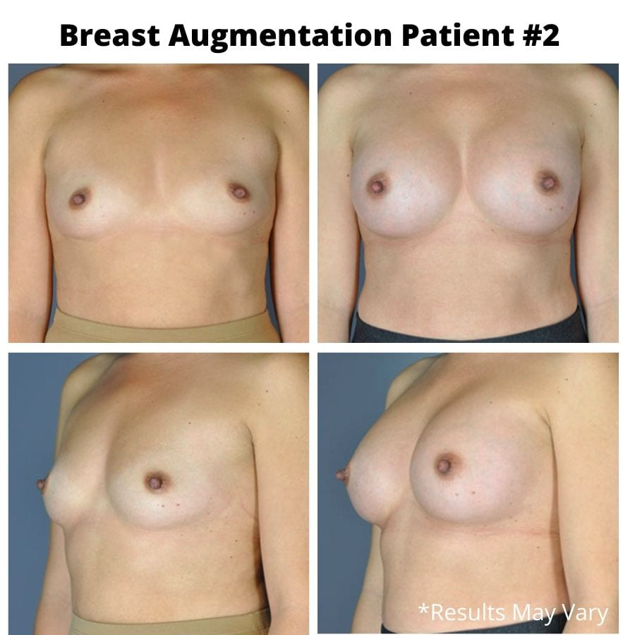 Before and after image showing the results of a breast augmentation performed by Dr. Stephens in Seattle, Washington.