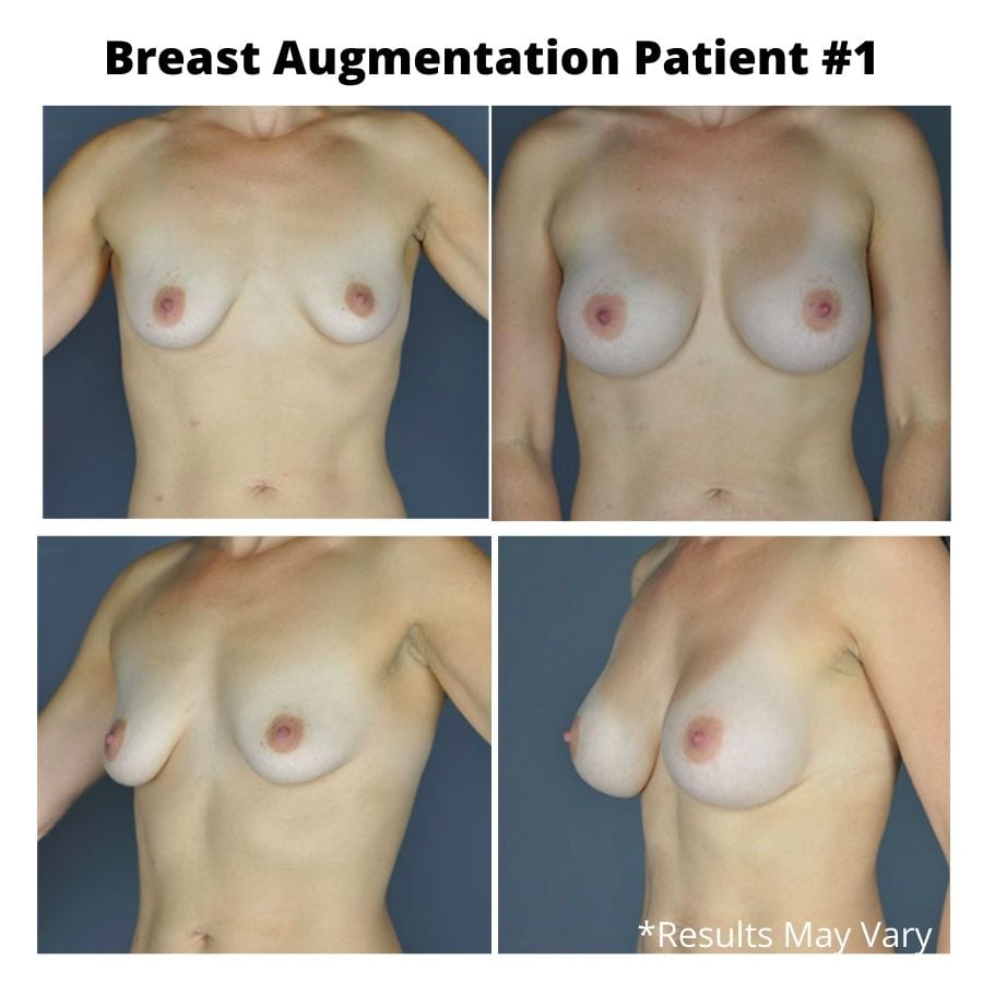 Before and after of a breast augmentation performed by Dr. Stephens in Seattle, Washington.