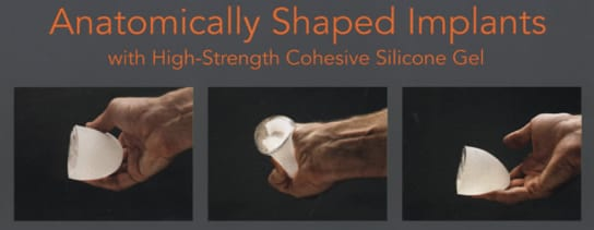 Image of Implant shapes
