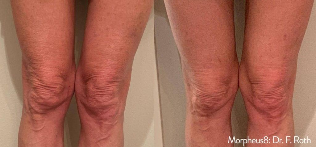 Morpheus8 Actual Patient Knees