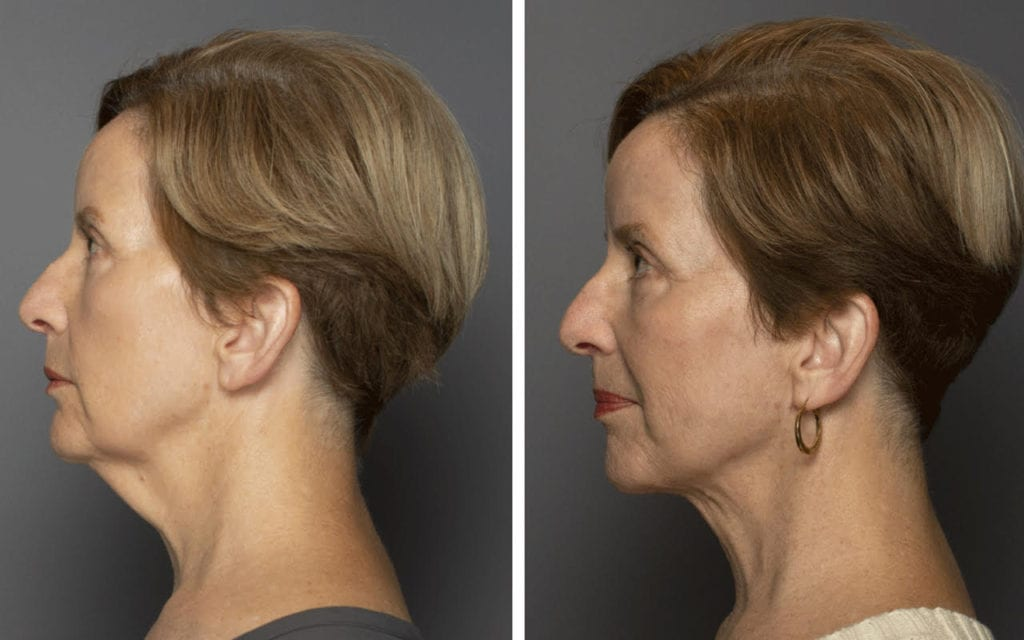 Facial Rejuvenation Patient Before & After